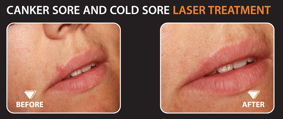 Cold Sore, Laurel  Dental
